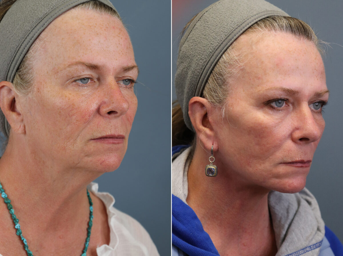 Facelift Before and After Photos in Lexington, KY, Patient 20380