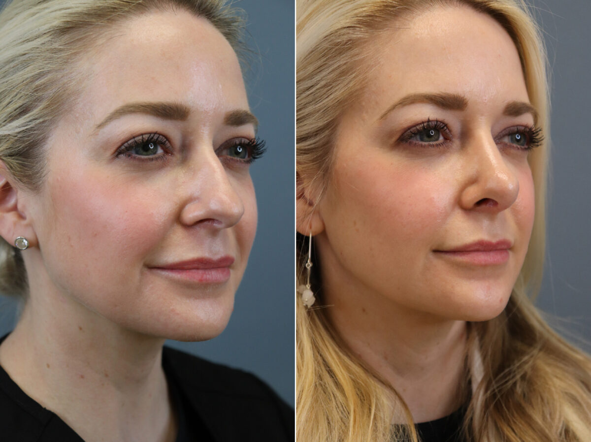 Nose Reshaping (Rhinoplasty) Before and After Photos in Lexington, KY, Patient 20399