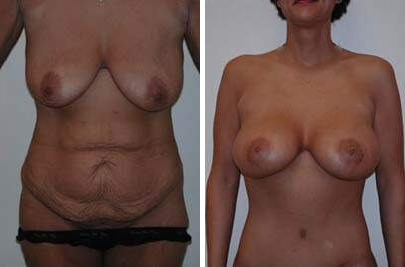Before and After Photos in , , Body Lift in Lexington, KY
