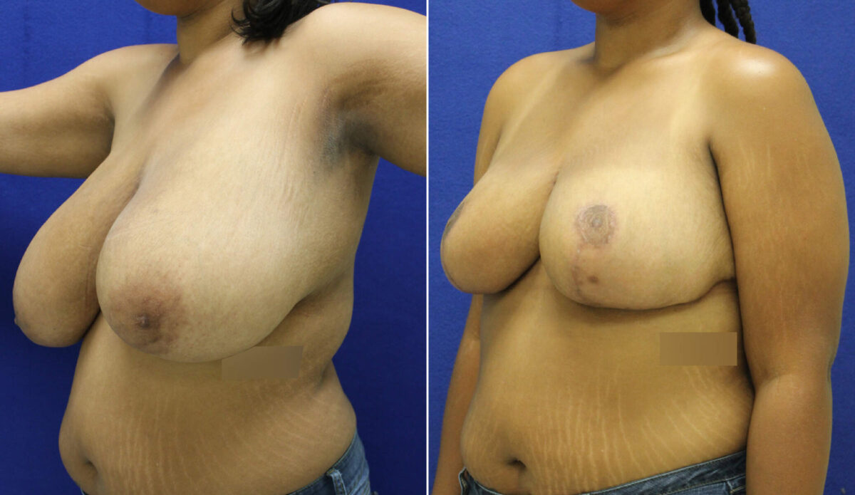 Breast Reduction Before and After Photos in Lexington, KY, Patient 7634