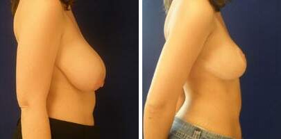 Breast Reduction Before and After Photos in Lexington, KY, Patient 7694