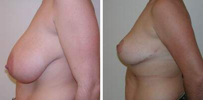 Breast Reduction Before and After Photos in Lexington, KY, Patient 7714