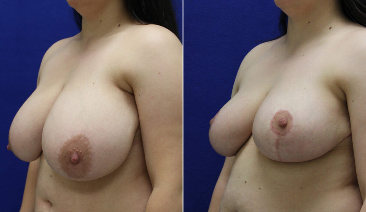 Breast Reduction Before and After Photos in Lexington, KY, Patient 7754