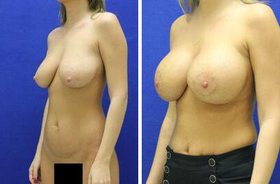 Breast Lift with Implants Before and After Photos in Lexington, KY, Patient 7764