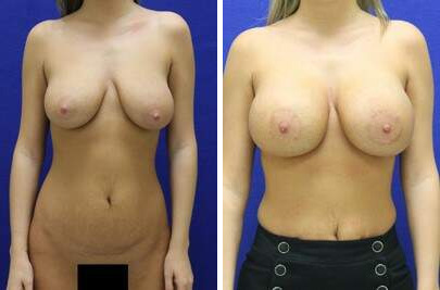 Before and After Photos in , , Breast Lift with Implant