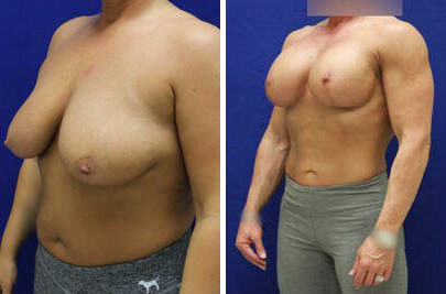 Breast Lift with Implants Before and After Photos in Lexington, KY, Patient 7784