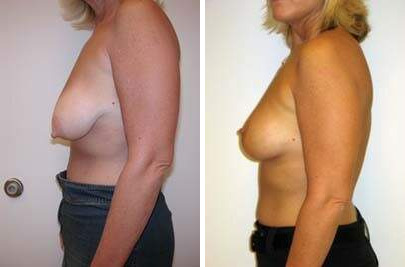 Breast Lift Before and After Photos in Lexington, KY, Patient 7836