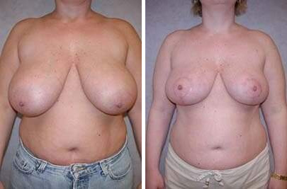 Breast Lift Before and After Photos in Lexington, KY, Patient 7856