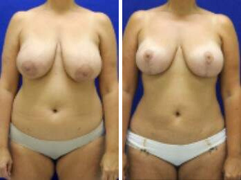 Breast Lift Before and After Photos in Lexington, KY, Patient 7876