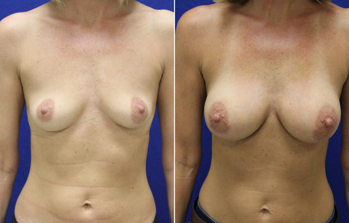 Breast Augmentation Before and After Photos in Lexington, KY, Patient 7906