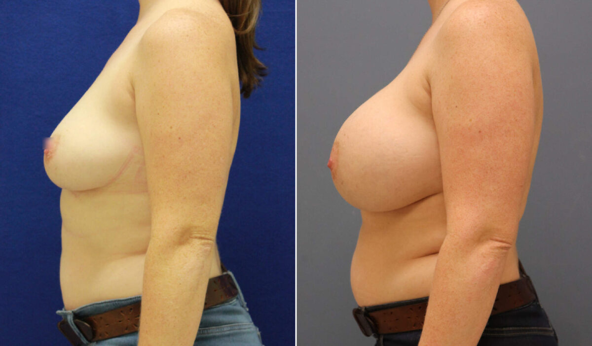 Breast Augmentation Before and After Photos in Lexington, KY, Patient 7977