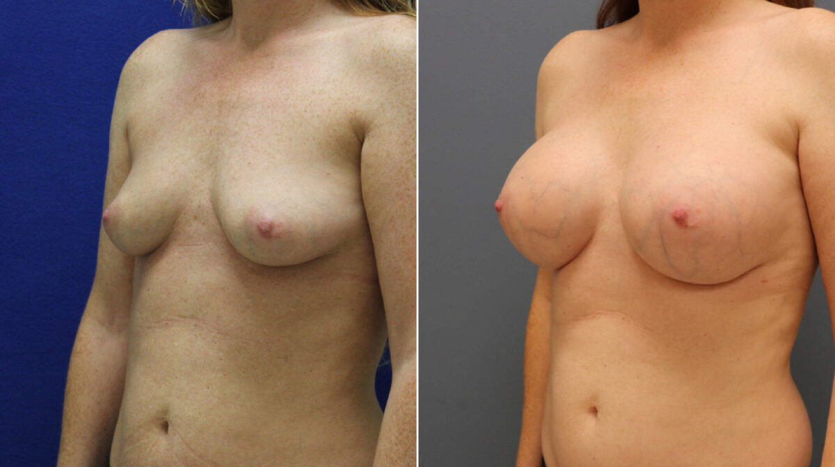 Breast Augmentation Before and After Photos in Lexington, KY, Patient 7987