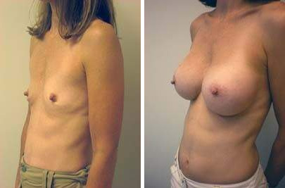 Breast Augmentation Before and After Photos in Lexington, KY, Patient 8107
