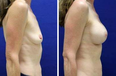 Breast Augmentation Before and After Photos in Lexington, KY, Patient 8177