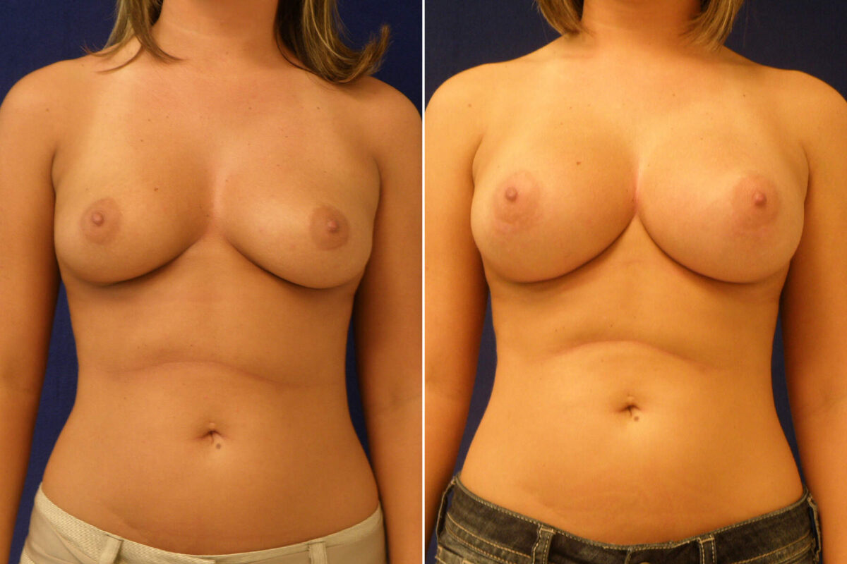 Breast Augmentation Before and After Photos in Lexington, KY, Patient 8193