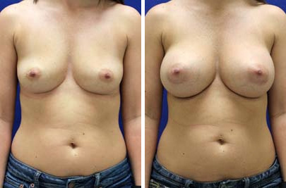 Breast Augmentation Before and After Photos in Lexington, KY, Patient 8213