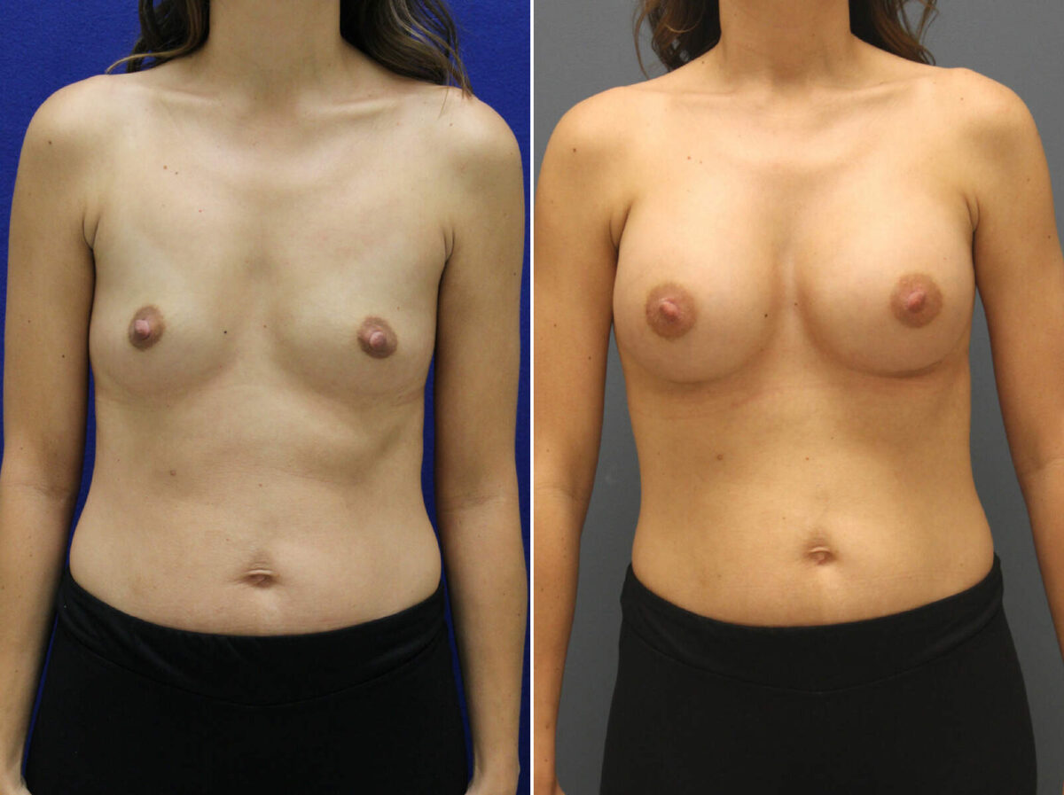 Breast Augmentation Before and After Photos in Lexington, KY, Patient 8594