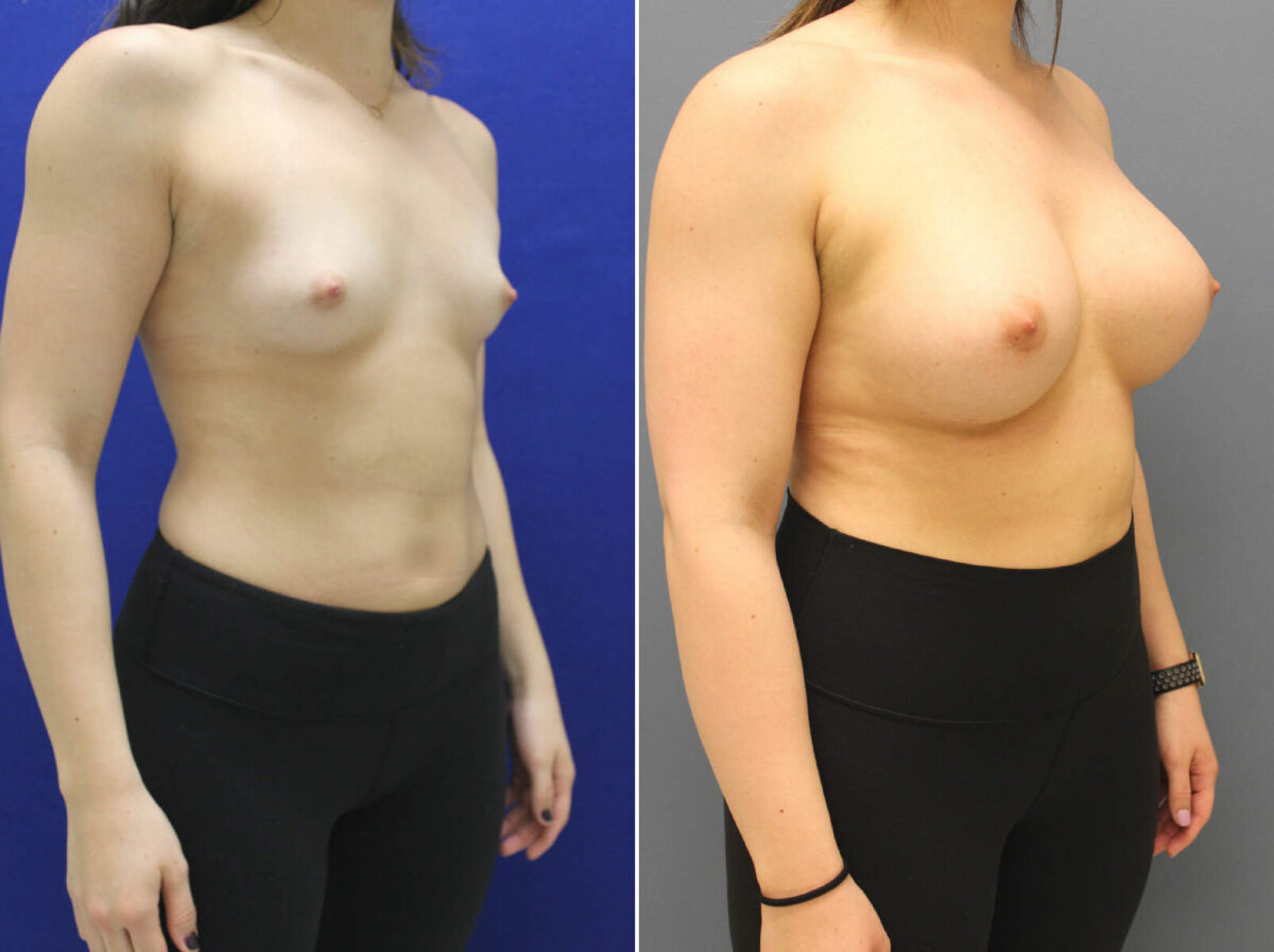 Breast Augmentation Before and After Photos in Lexington, KY, Patient 8615