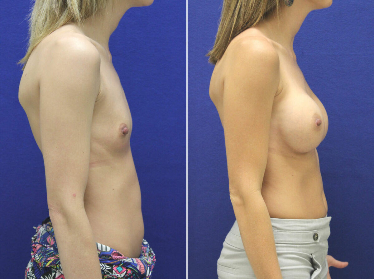 Breast Augmentation Before and After Photos in Lexington, KY, Patient 8625