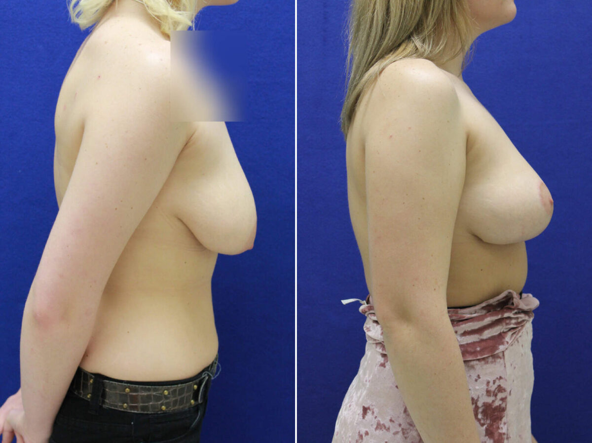 Breast Lift Before and After Photos in Lexington, KY, Patient 8686