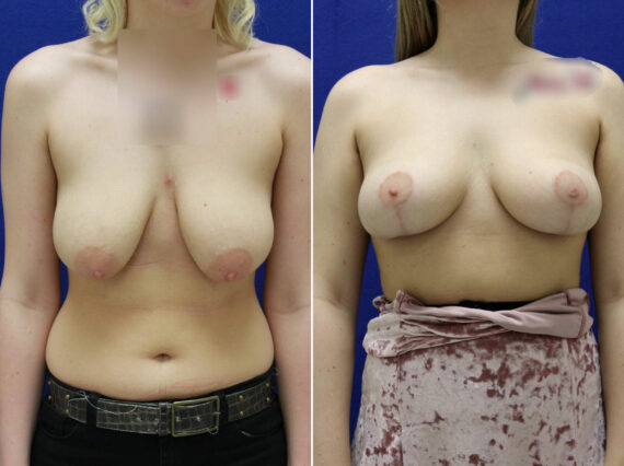 Before and After Photos in , , Breast Lift Lexington, KY
