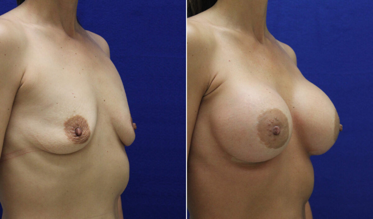 Before and After Photos in , , Breast Reconstruction in Lexington, KY
