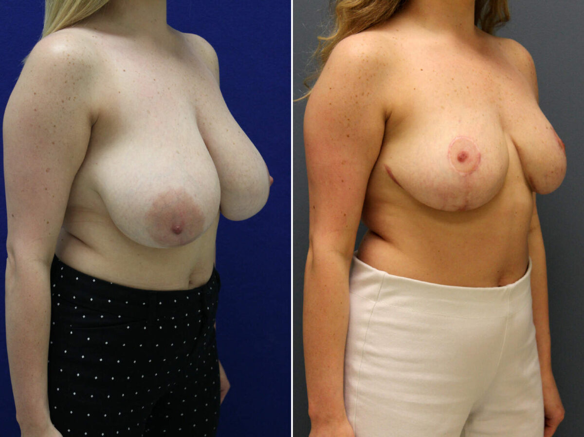 Breast Reduction Before and After Photos in Lexington, KY, Patient 9186