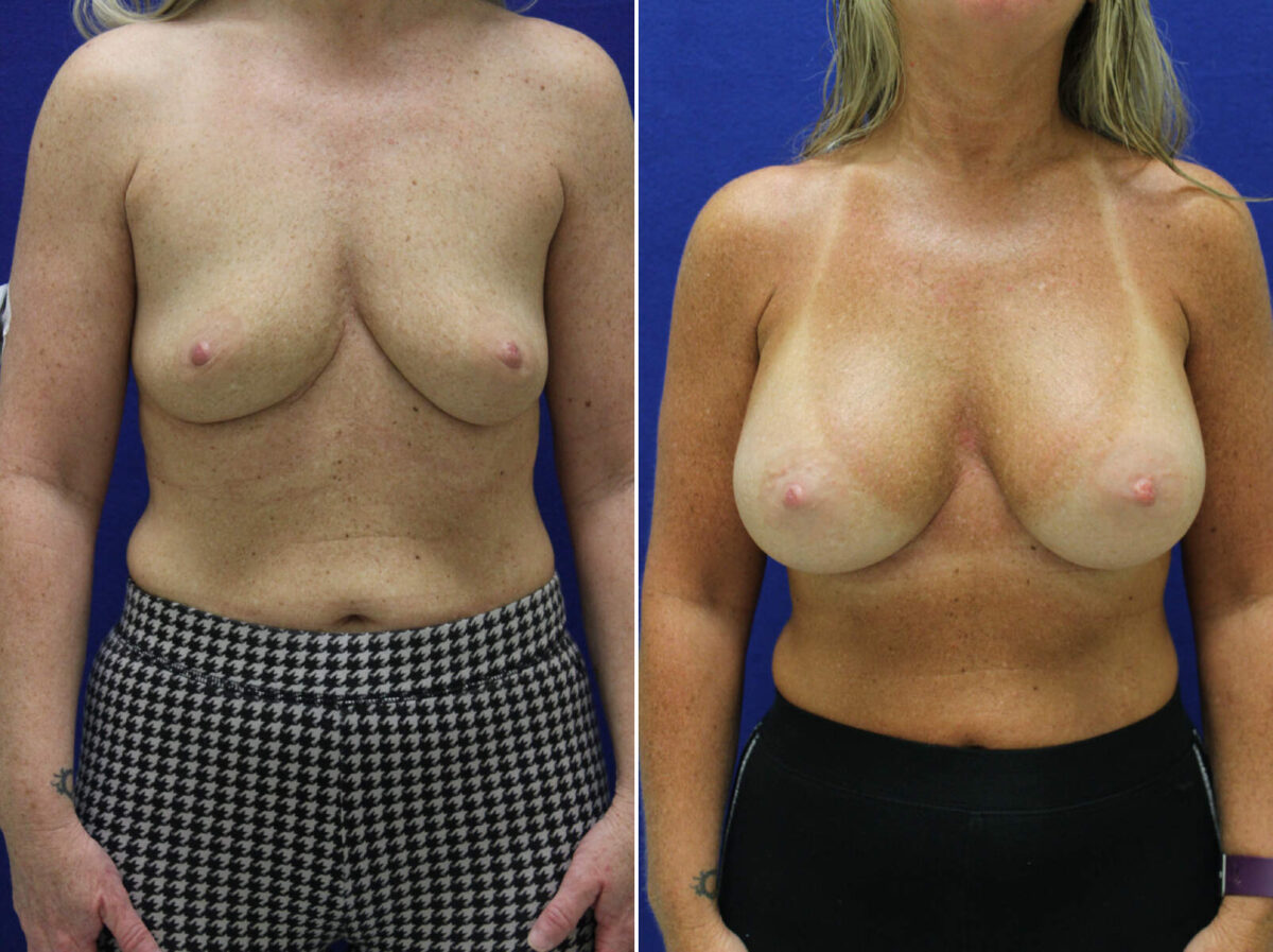 Breast Augmentation Before and After Photos in Lexington, KY, Patient 9363