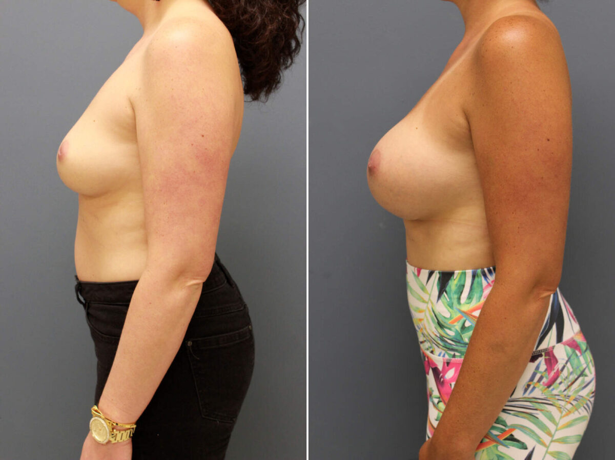 Breast Augmentation Before and After Photos in Lexington, KY, Patient 9516