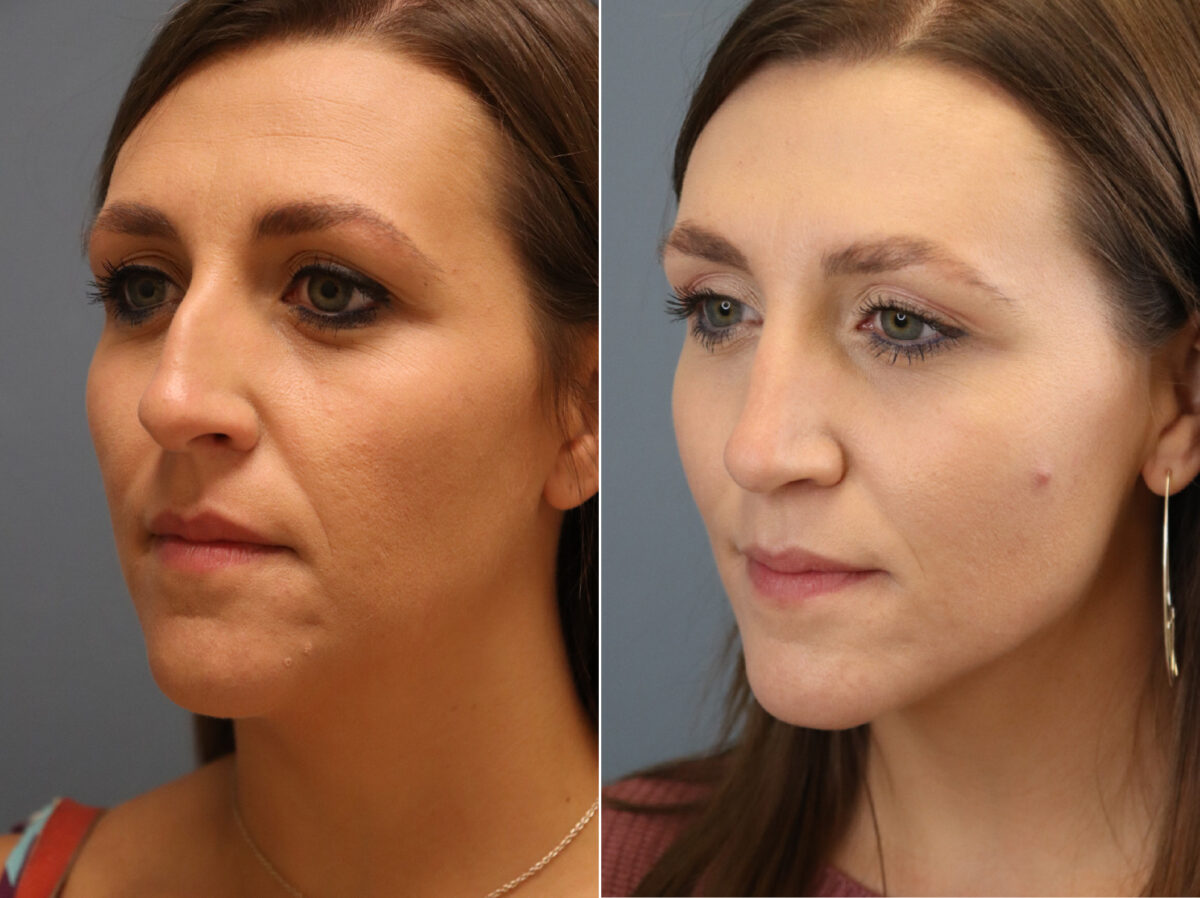 Nose Reshaping (Rhinoplasty) Before and After Photos in Lexington, KY, Patient 20316