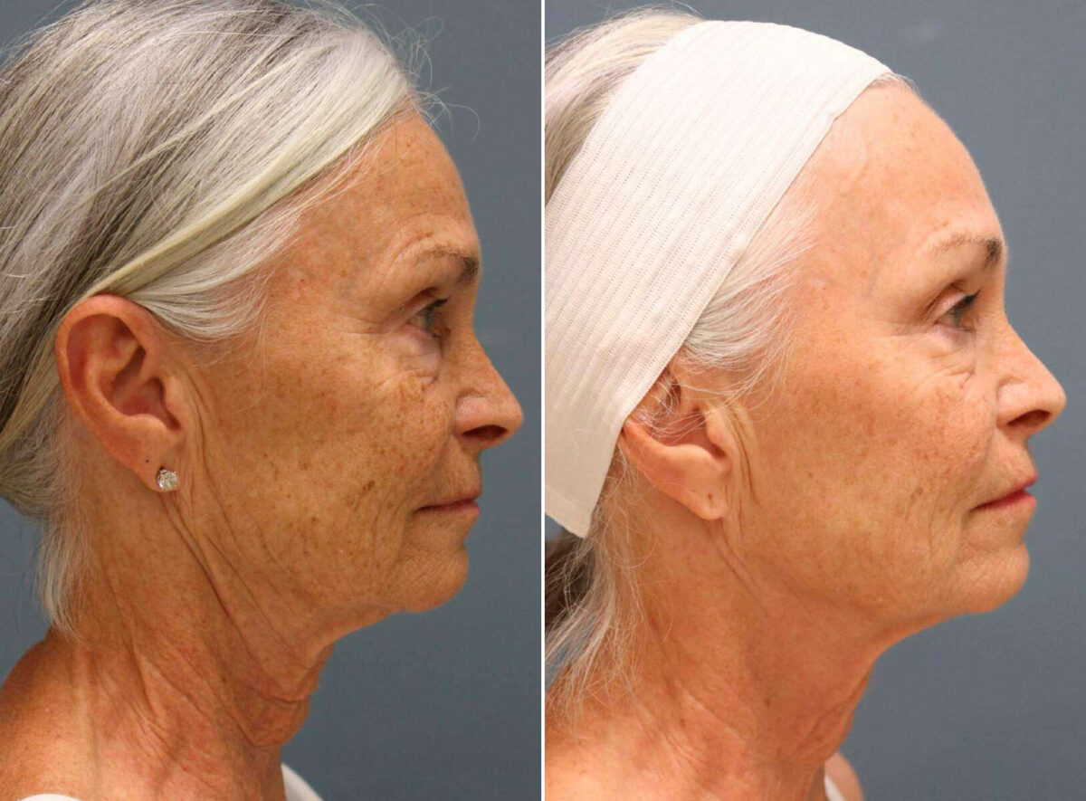 Micro-Needling RF Before and After Photos in Lexington, KY, Patient 20433