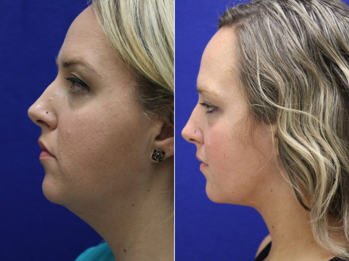 Neck Liposuction Before and After Photos in Lexington, KY, Patient 20598