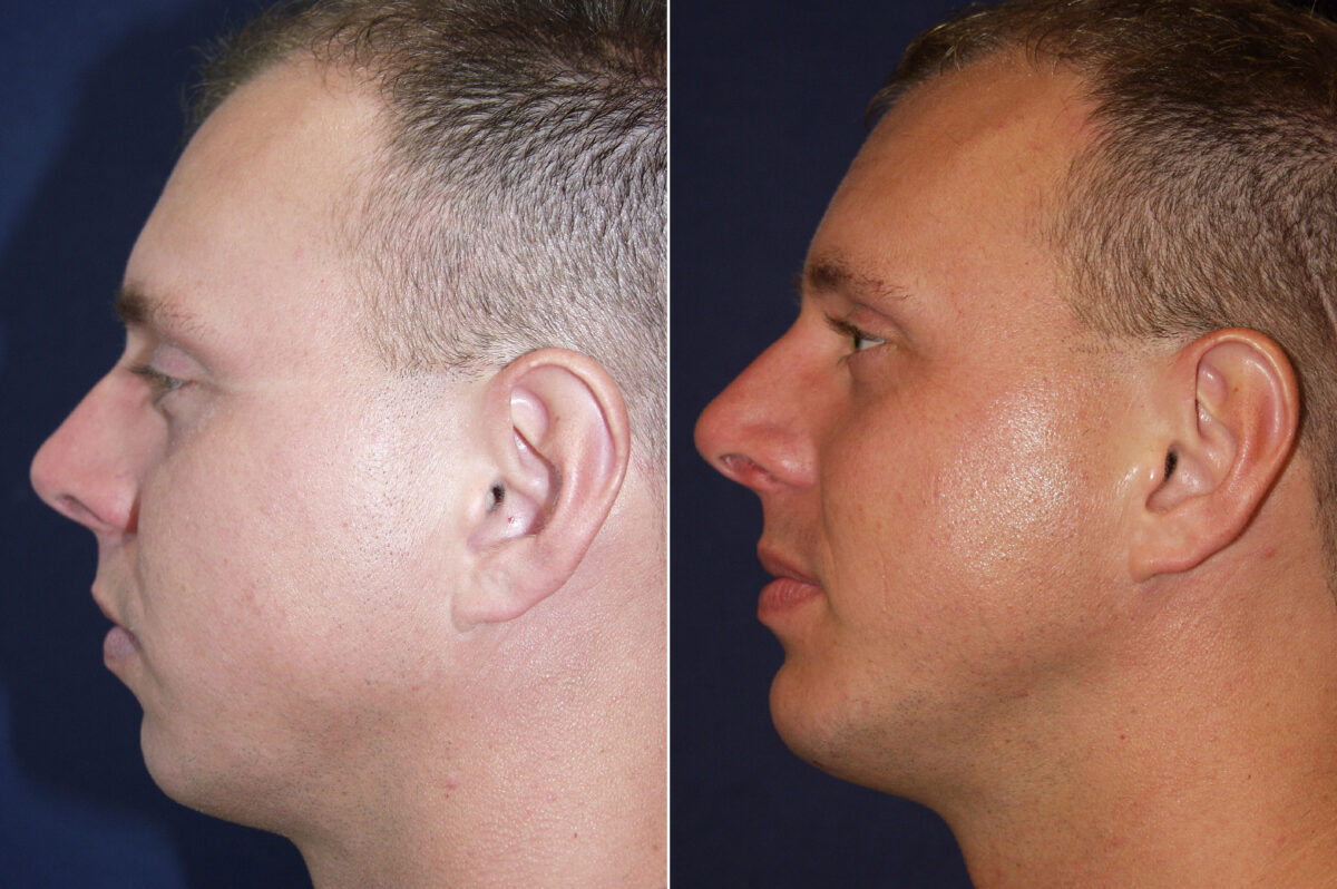 Chin Augmentation Before and After Photos in Lexington, KY, Patient 20616