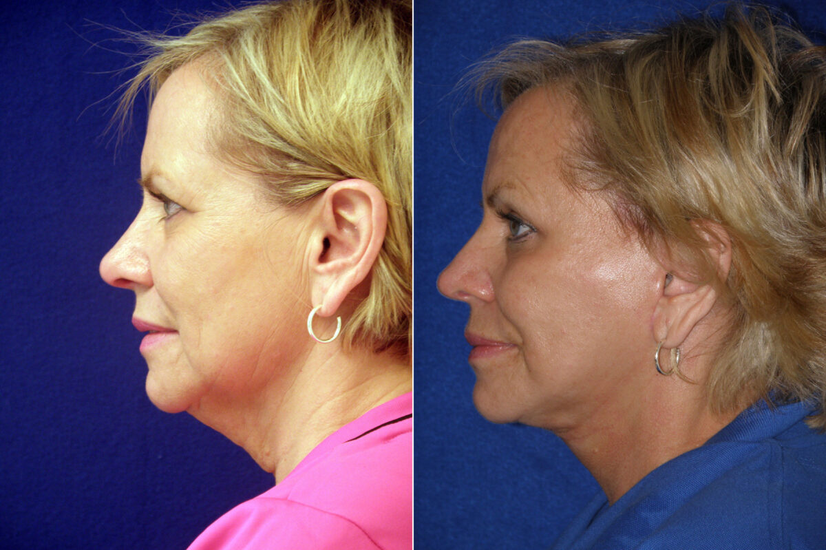 Facelift Before and After Photos in Lexington, KY, Patient 20641