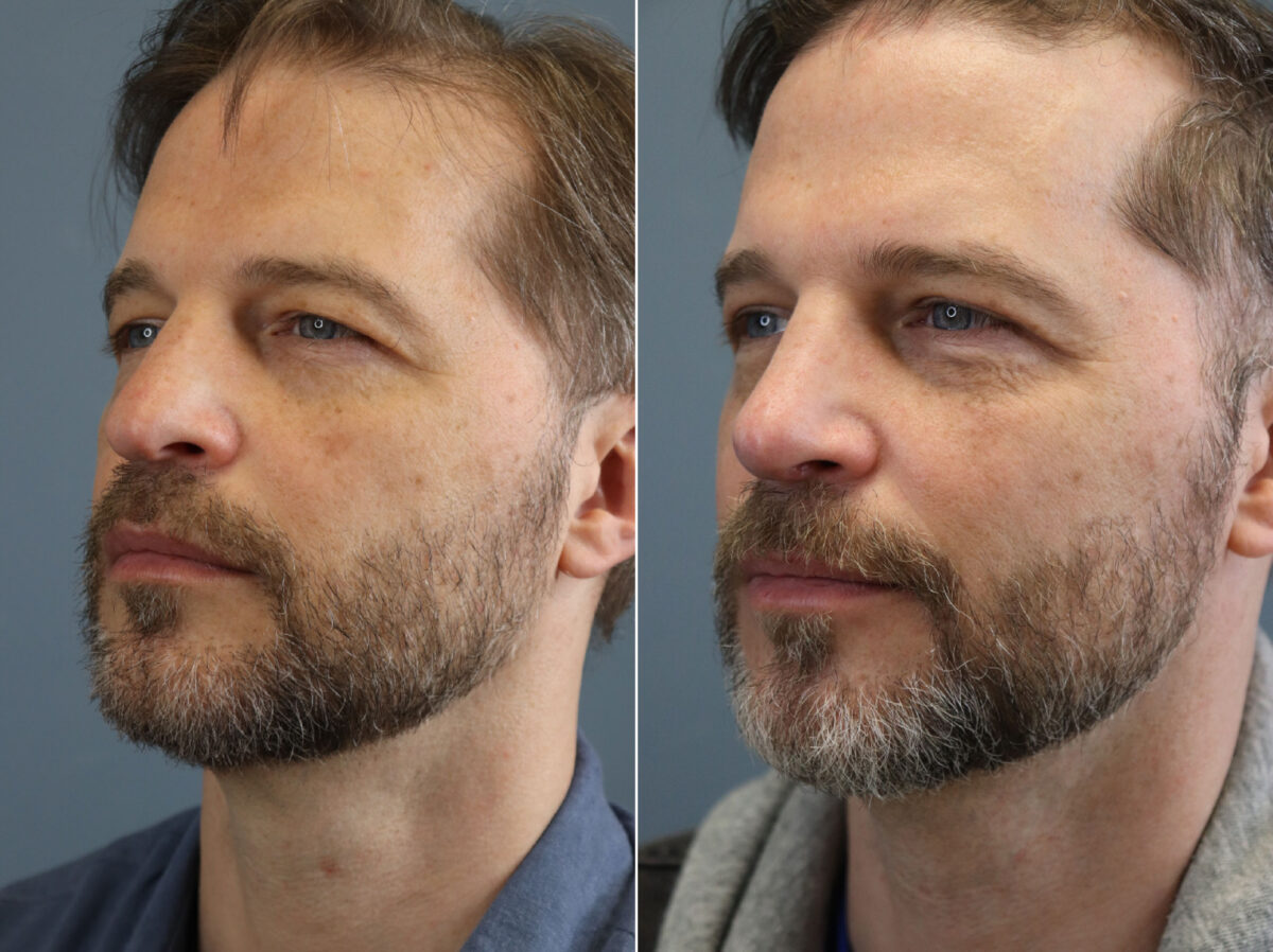 Nose Reshaping (Rhinoplasty) Before and After Photos in Lexington, KY, Patient 20656