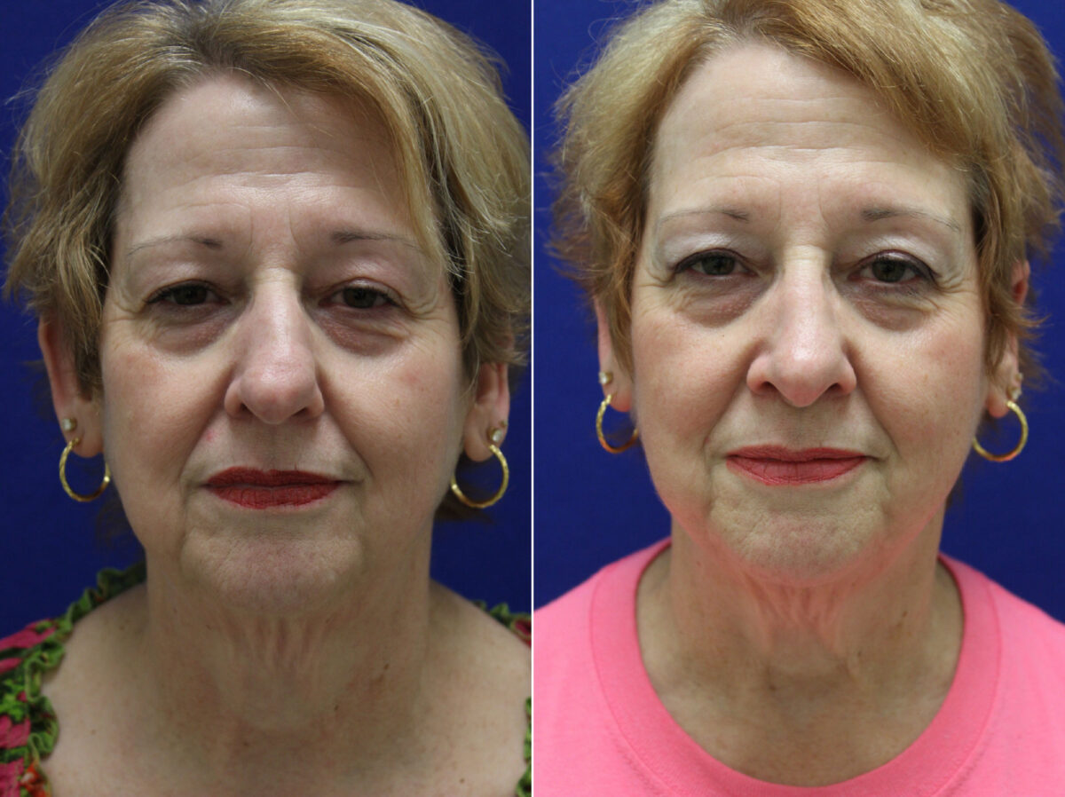 Nose Reshaping (Rhinoplasty) Before and After Photos in Lexington, KY, Patient 20671