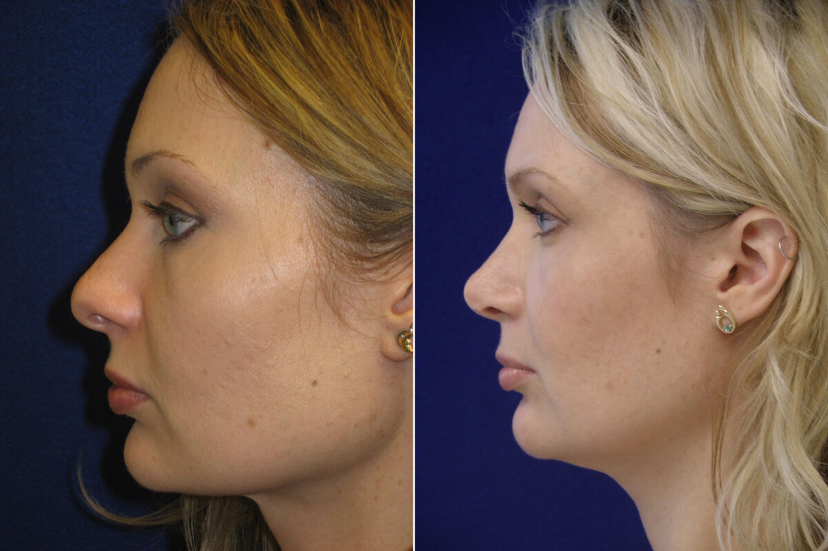 Nose Reshaping (Rhinoplasty) Before and After Photos in Lexington, KY, Patient 20690
