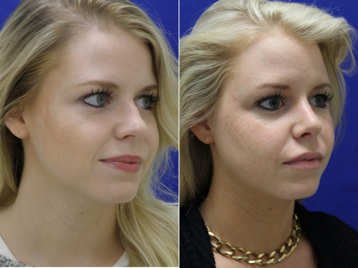 Nose Reshaping (Rhinoplasty) Before and After Photos in Lexington, KY, Patient 20708