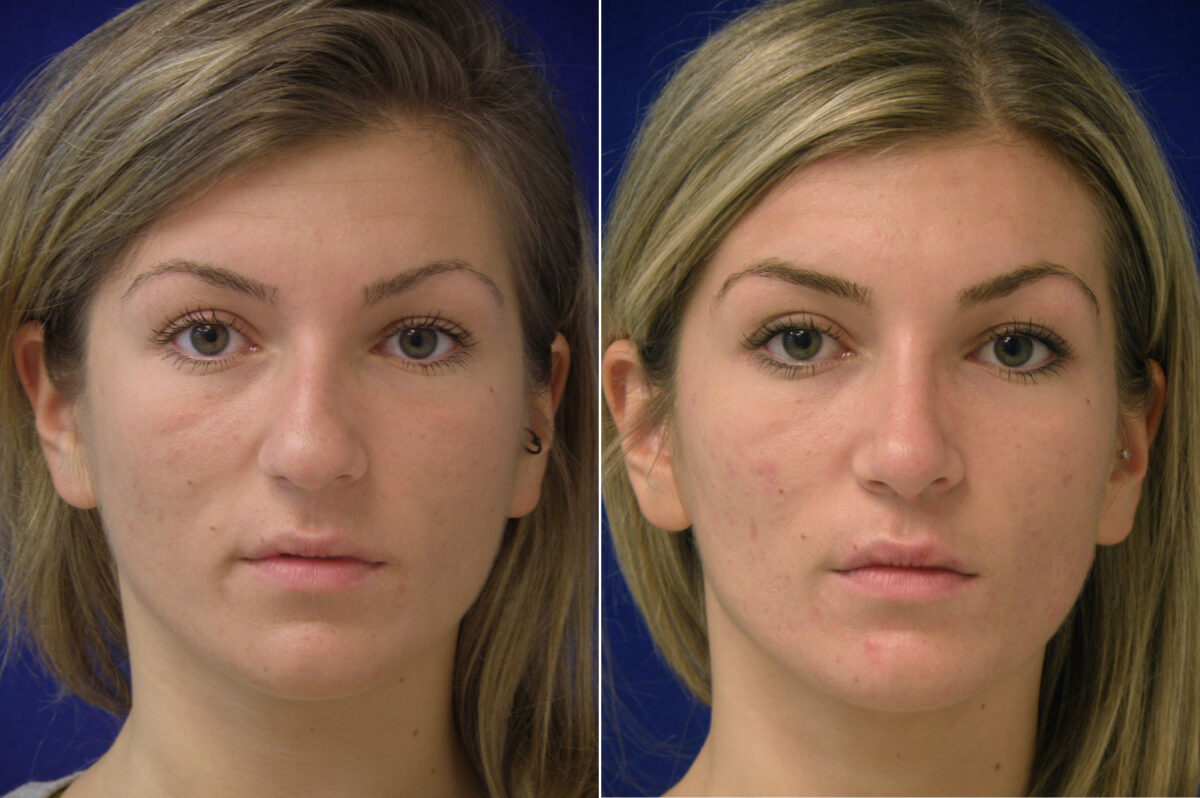 Nose Reshaping (Rhinoplasty) Before and After Photos in Lexington, KY, Patient 20738