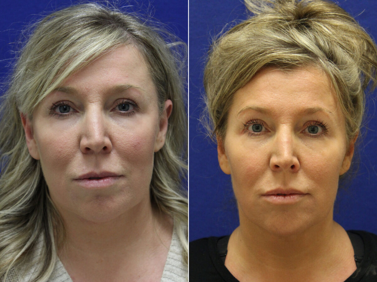 Neck Liposuction Before and After Photos in Lexington, KY, Patient 20753