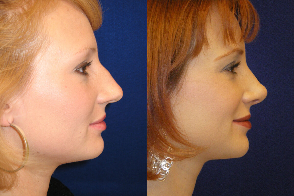 Nose Reshaping (Rhinoplasty) Before and After Photos in Lexington, KY, Patient 20779