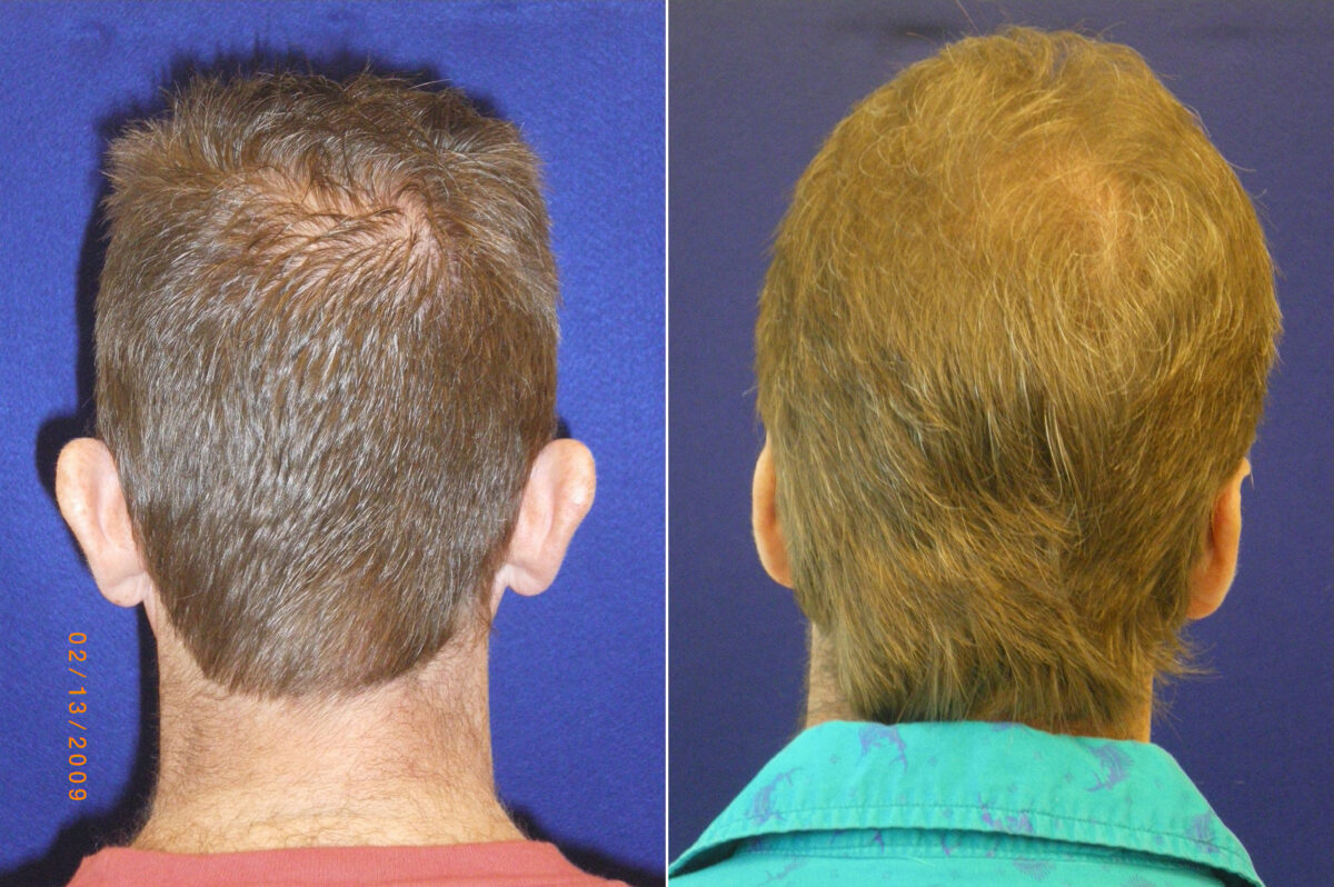 Ear Enhancements Before and After Photos in Lexington, KY, Patient 20796