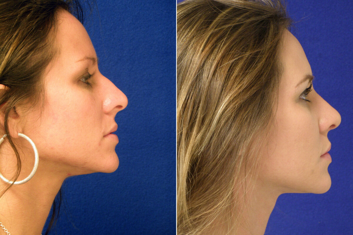 Nose Reshaping (Rhinoplasty) Before and After Photos in Lexington, KY, Patient 20808
