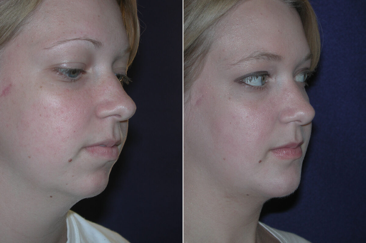Chin Augmentation Before and After Photos in Lexington, KY, Patient 20823