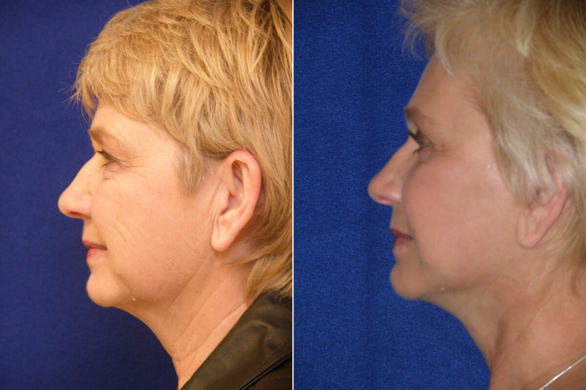 Brow Lift Before and After Photos in Lexington, KY, Patient 20841