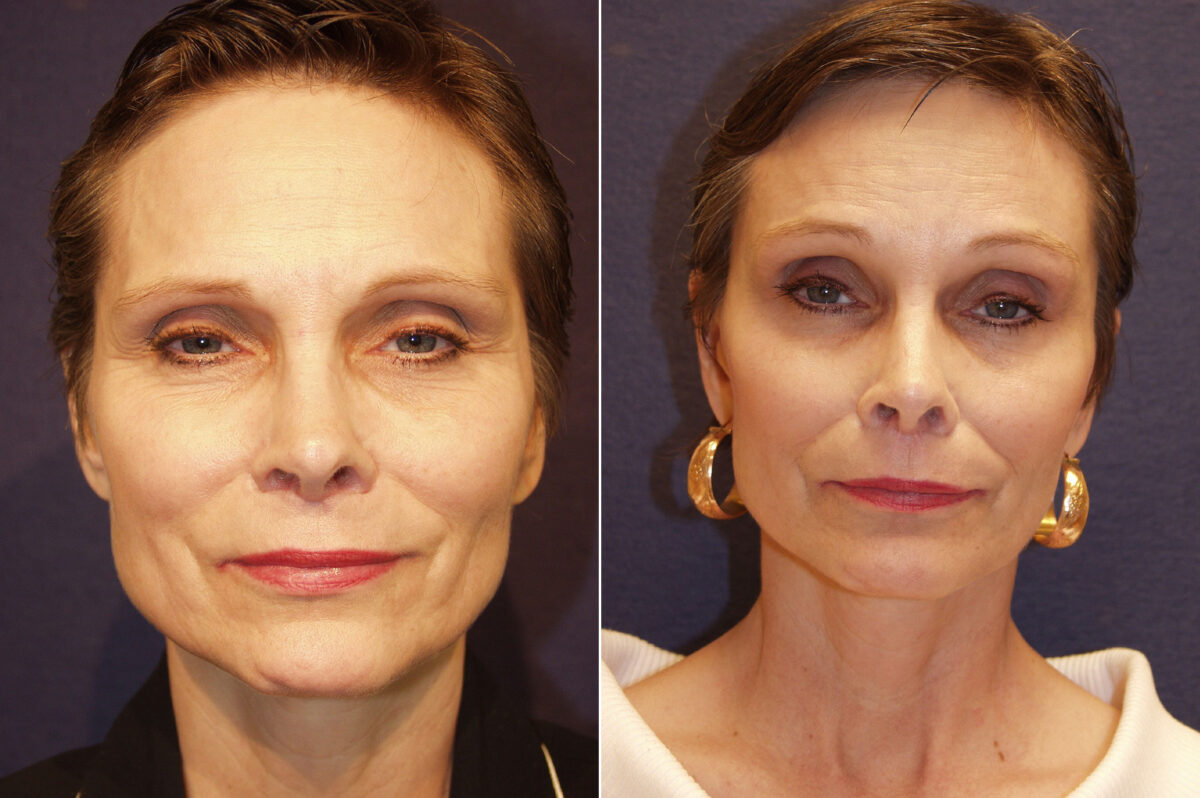 Brow Lift Before and After Photos in Lexington, KY, Patient 20860