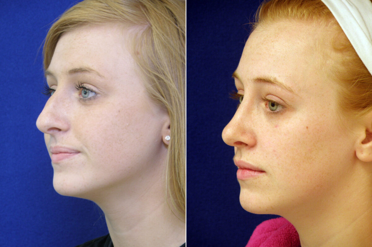 Nose Reshaping (Rhinoplasty) Before and After Photos in Lexington, KY, Patient 20872