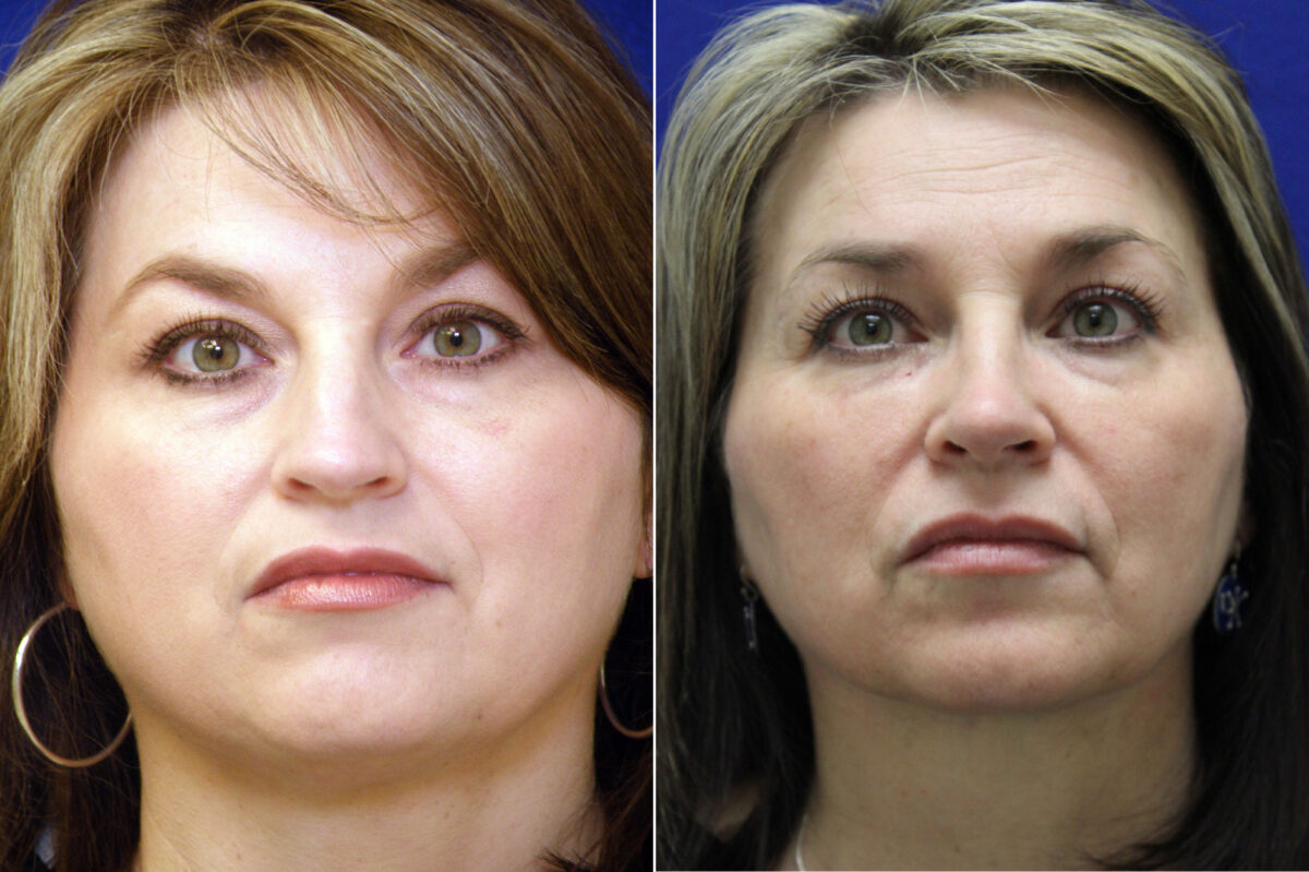 Neck Liposuction Before and After Photos in Lexington, KY, Patient 20900