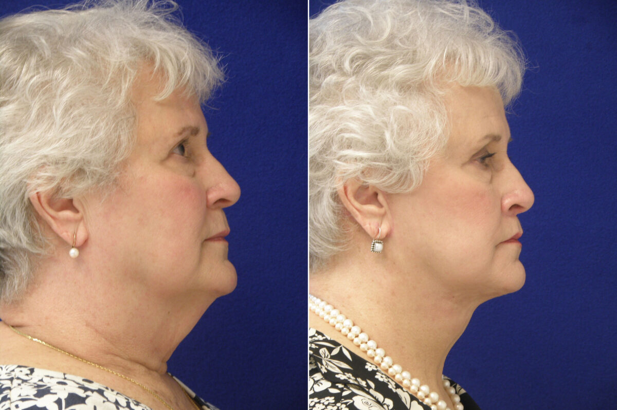 Facelift Before and After Photos in Lexington, KY, Patient 20918