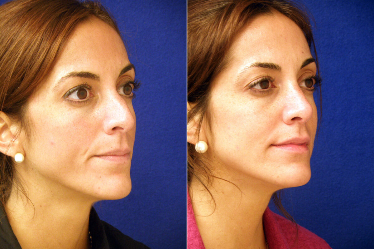 Nose Reshaping (Rhinoplasty) Before and After Photos in Lexington, KY, Patient 20935